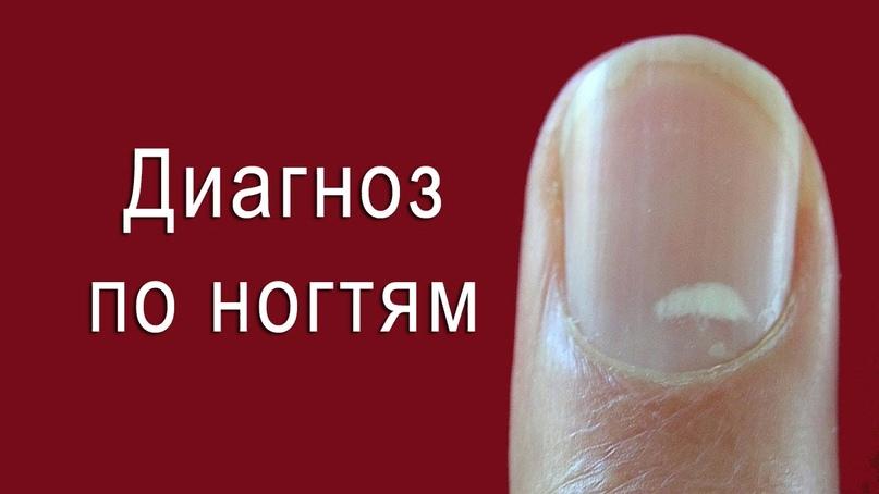 О каких болезнях можно узнать по ногтям., изображение №3