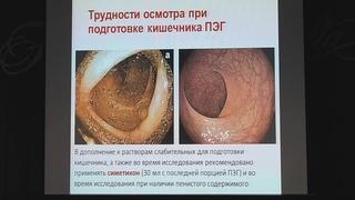 11 Корнеев АА Подготовка кишечника к колоноскопии
