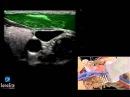 3D-пособие: Катетеризация внутренней яремной вены под контролем ультразвука с поперечным доступом