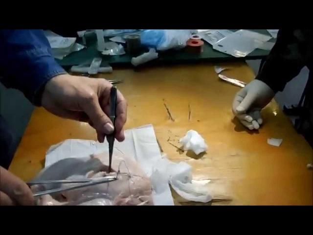 ПХО первичная хирургическая обработка раны