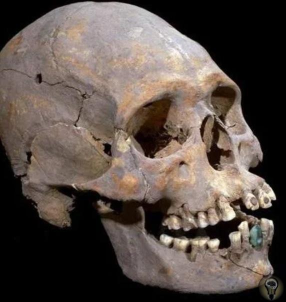 Древний череп с протезами нашли в мексиканской пирамиде В развалинах древнего города Теотиуакан в Мексике при раскопках был найден череп женщины. Археологов поразил тот факт, что в челюсти
