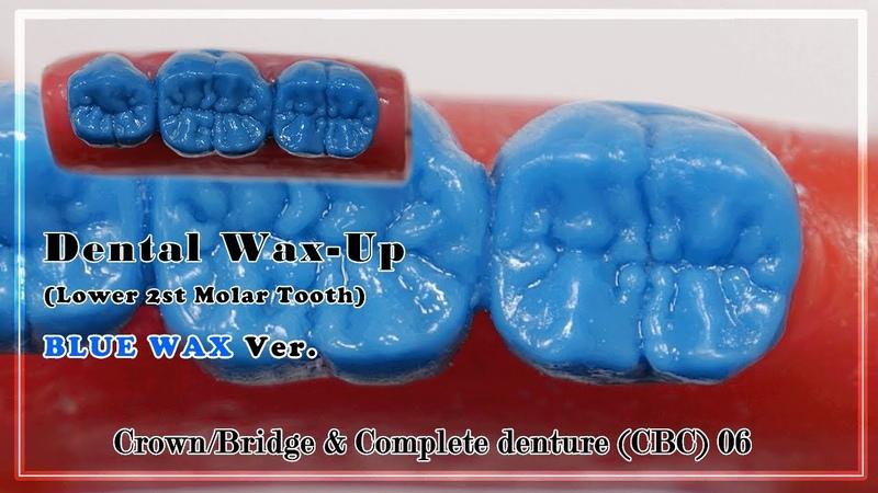Dental Waxup For Crown Bridge Complete denture CBC Lower 2st molar basic course 06 4k