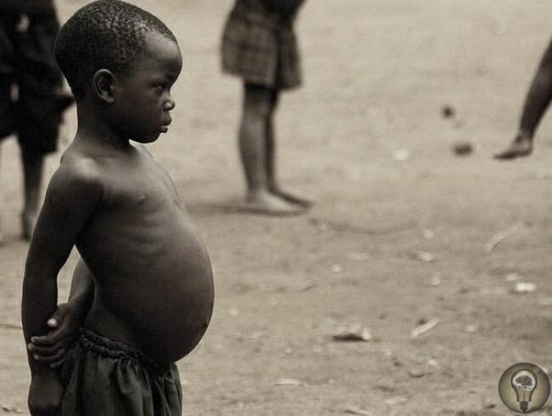 ИЗ-ЗА ЧЕГО У АФРИКАНСКИХ ДЕТЕЙ ВЫРАСТАЕТ ТАКОЙ БОЛЬШОЙ ЖИВОТ На многих фотографиях, где запечатлены жители бедных африканских деревень можно увидеть грязных полуголых детей в порванной одежде.