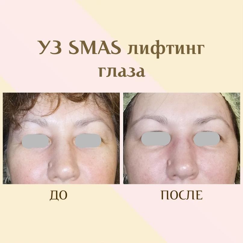 Уникальность УЗ SMAS лифтинга, изображение №1