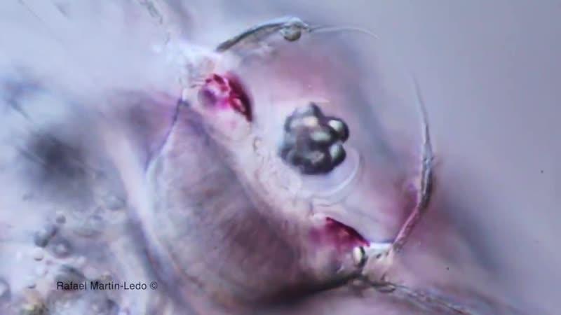 Apical organ (statocyst)