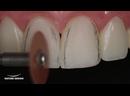 Acabamento e Polimento em Restaurações de Dentes Anteriores - Parte 1