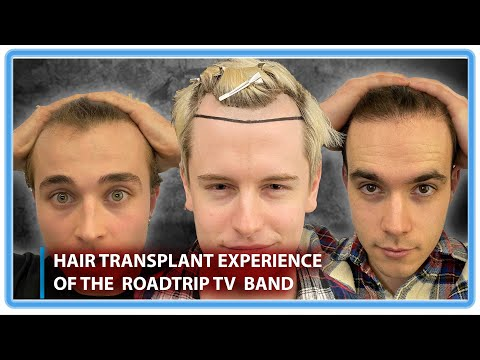 Hair Transplant Experience of the Roadtrip TV Band